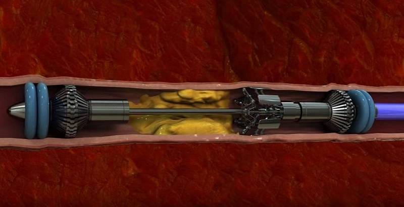 Surgical Machine That Removes Cholesterol Plaques